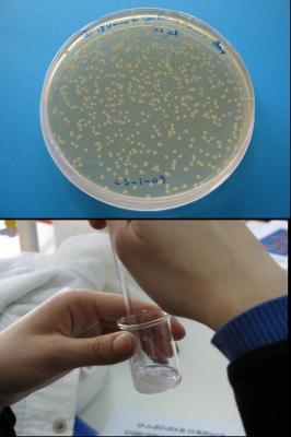 Obtención de ADN a partir de E. coli